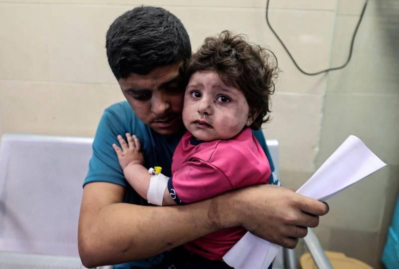 TOPSHOT - A Palestinian man holds an injured girl awaiting medical care at al-Shifa hospital, after an Israeli air strike in Gaza city, on May 11, 2021. / AFP / MAHMUD HAMS