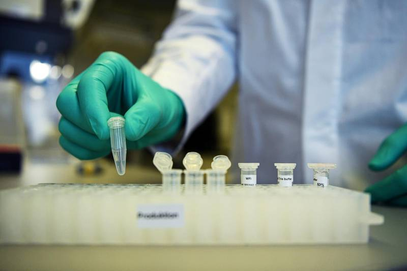 FILE PHOTO: An employee of German biopharmaceutical company CureVac, demonstrates research workflow on a vaccine for the coronavirus (COVID-19) disease at a laboratory in Tuebingen, Germany, March 12, 2020. Picture taken on March 12, 2020. REUTERS/Andreas Gebert/File Photo