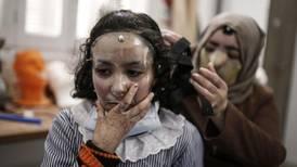 Gaza schoolgirl's 3D-printed mask helps heal her burnt face
