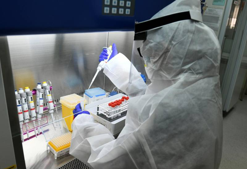 Abu Dhabi, United Arab Emirates - Lab technician carries out tests for Covid-19 detection at MenaLabs Medical Laboratory in Abu Dhabi. Khushnum Bhandari for The National