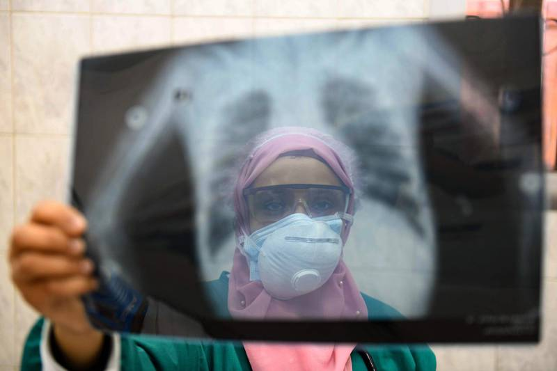 """(FILES) In this file photo taken on April 19, 2020, an Egyptian doctor wearing two protective masks checks a patient's lung X-ray at the infectious diseases unit of the Imbaba hospital in the capital Cairo, during the COVID-19 coronavirus pandemic crisis.   Four months after Egypt reported its first coronavirus case, experts say the health system is approaching a """"critical threshold"""" in its capacity to tackle the disease. The Arab world's most populous country of 100 million inhabitants has so far declared JUST OVER 12,000 coronavirus cases and 600 fatalities from the COVID-19 respiratory disease. / AFP / Ahmed HASAN"""