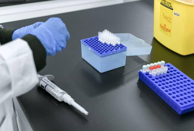 Abu Dhabi, United Arab Emirates - Substances being tested at the Omics Lab in Masdar City. Khushnum Bhandari for The National