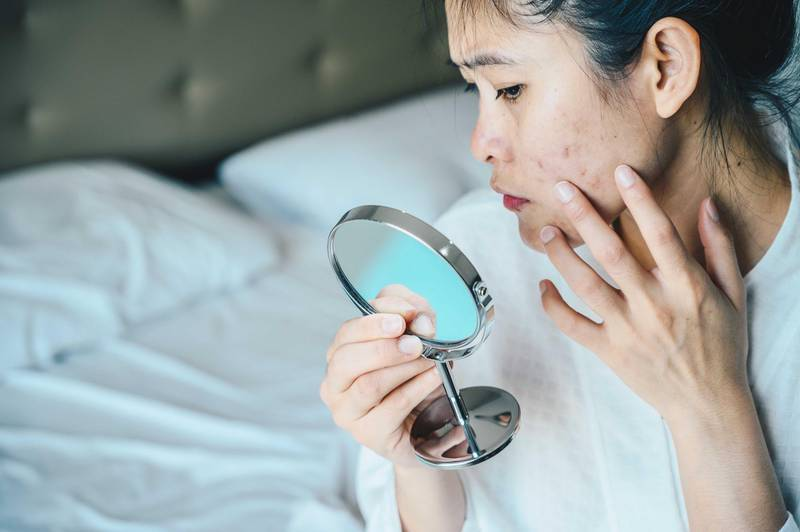 Close up of Asian woman worry about her face when she saw the problem of acne and scar by the mini mirror. Getty Images