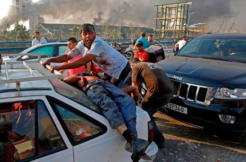 -- AFP PICTURES OF THE YEAR 2020 --  An injured man lies at the back of a car before being rushed away from the scene of a massive explosion at the port of Lebanon's capital Beirut on August 4, 2020. Two huge explosion rocked the Lebanese capital Beirut, wounding dozens of people, shaking buildings and sending huge plumes of smoke billowing into the sky. Lebanese media carried images of people trapped under rubble, some bloodied, after the massive explosions, the cause of which was not immediately known.  -   / AFP / Marwan TAHTAH