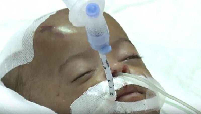 Provided photo of nine-year-old, Salama Al Mazmi, who is in a coma at Al Qasimi Hospital in Sharjah after allegedly been tortured by her FamilyÕs maid  Courtesy Government of Sharjah? *** Local Caption ***  coma  copy.jpg