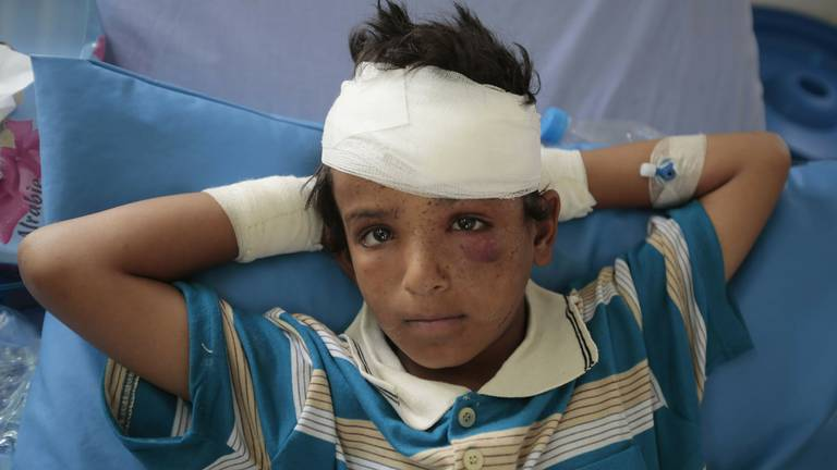 An image that illustrates this article Unicef: 10,000 Yemeni children have been killed or maimed since war began