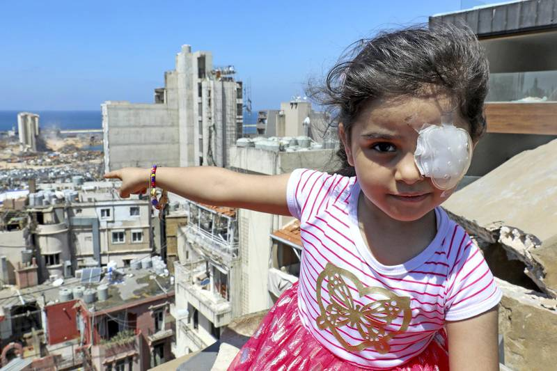 Sama al-Hamad, 6-year-old Syrian girl who lost her left eye in the August 4 cataclysmic explosion, points at the blast site from the roof of her damaged house in Beirut's Mar Mikhael district on August 16, 2020. - The powerful August 4 explosion that killed 177 people and devastated swathes of the Lebanese capital also left thousands wounded, mostly from flying shards of glass. At least 400 people suffered ocular injuries, more than 50 required surgery, and at least 15 were permanently blinded in one eye, according to data compiled by major hospitals in and around Beirut. (Photo by ANWAR AMRO / AFP)