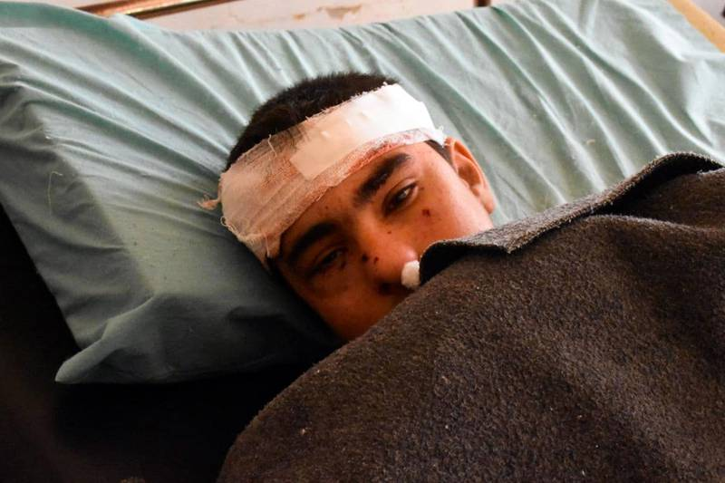 """A handout picture released by the official Syrian Arab News Agency (SANA) on January 22, 2021, shows an injured boy lying  in a hospital bed following a reported Israeli strikes on the Syrian province of Hama. - The Syrian Observatory for Human Rights said the Israeli raids targeted Syrian military sites and resulted in the """"destruction"""" of five of them in an area of Hama where Iran-backed fighters are present. But the war monitor said the civilians were killed by """"debris from one of the Syrian anti-aircraft defence missiles that fell on a house in a densely populated neighbourhood"""". (Photo by STRINGER / various sources / AFP) / == RESTRICTED TO EDITORIAL USE - MANDATORY CREDIT """"AFP PHOTO / HO / SANA"""" - NO MARKETING NO ADVERTISING CAMPAIGNS - DISTRIBUTED AS A SERVICE TO CLIENTS =="""