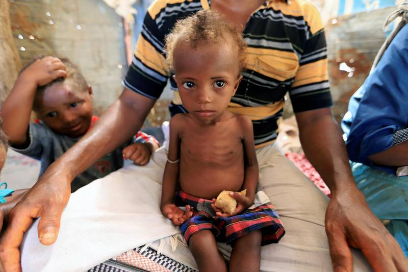 Hanaa Ahmad Ali Bahr, a malnourished girl sits on her father's lap in a shanty town in Hodeidah, Yemen March 25, 2019. REUTERS/Abduljabbar Zeyad