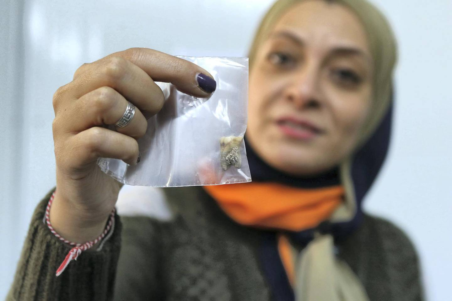 A Scientist displays a 2000 years-old teath which she is making researches on at the International Research Centre SESAME ( Synchrotron-light for Experimental Science and Applications in the Middle East) near Amman, Jordan. ( Salah Malkawi for The National)