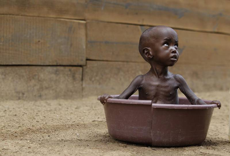 """Two-year-old, Aden Salaad, looks up toward his mother, unseen, as she bathes him in a tub at a Doctors Without Borders hospital, where Aden is receiving treatment for malnutrition, in Dagahaley Camp, outside Dadaab, Kenya, Monday, July 11, 2011. U.N. refugee chief Antonio Guterres said Sunday that drought-ridden Somalia is the """"worst humanitarian disaster"""" in the world, after meeting with refugees who endured unspeakable hardship to reach the world's largest refugee camp in Dadaab, Kenya. (AP Photo/Rebecca Blackwell)"""