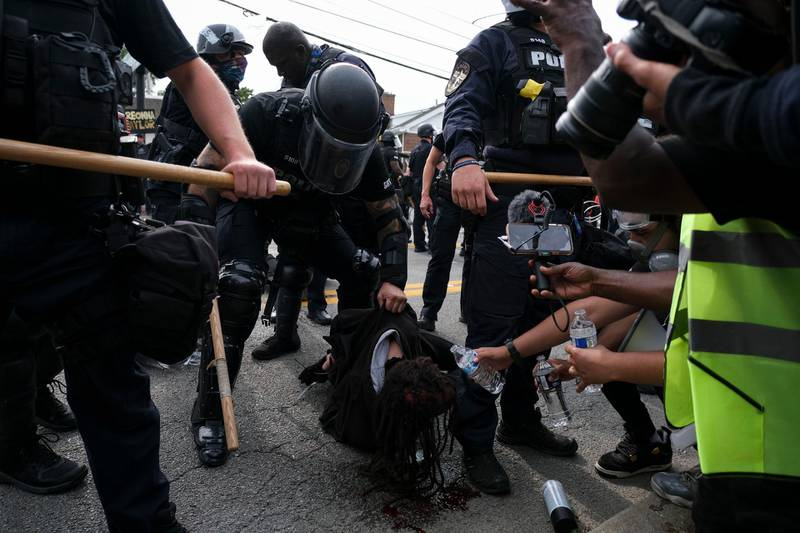 """A protestor is detained while bleeding from the head in downtown Louisville, Kentucky, on September 23, 2020, after a judge announced the charges brought by a grand jury against Detective Brett Hankison, one of three police officers involved in the fatal shooting of Breonna Taylor in March. - Hankison was charged today, September 23, with three counts of """"wanton endangerment"""" in connection with the shooting of  Taylor, a 26-year-old black woman whose name has become a rallying cry for the Black Lives Matter movement. (Photo by Jeff Dean / AFP)"""
