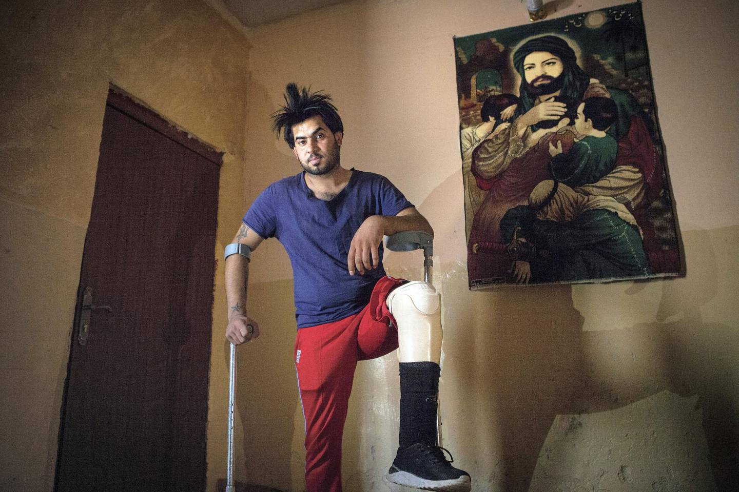 Hassam Naeem, 22, a former Iraqi Hashd Al Shaabi fighter, got injured during a military operation against the Islamic State. Amputee and jobless, Naeem lives now at his parent's house, in Basra, a major city in south Iraq. Photo by Sebastian Castelier