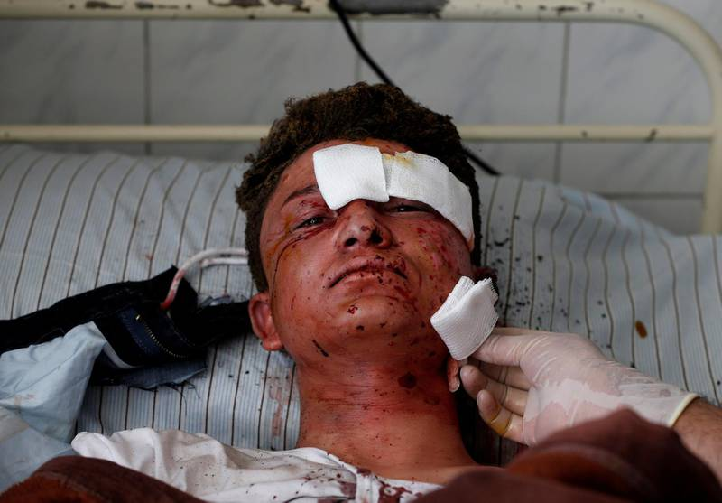 ATTENTION EDITORS - VISUAL COVERAGE OF SCENES OF INJURY OR DEATH An Afghan man receives treatment at a hospital after a suicide attack in Kabul, Afghanistan March 21, 2018. REUTERS/Omar Sobhani     TEMPLATE OUT