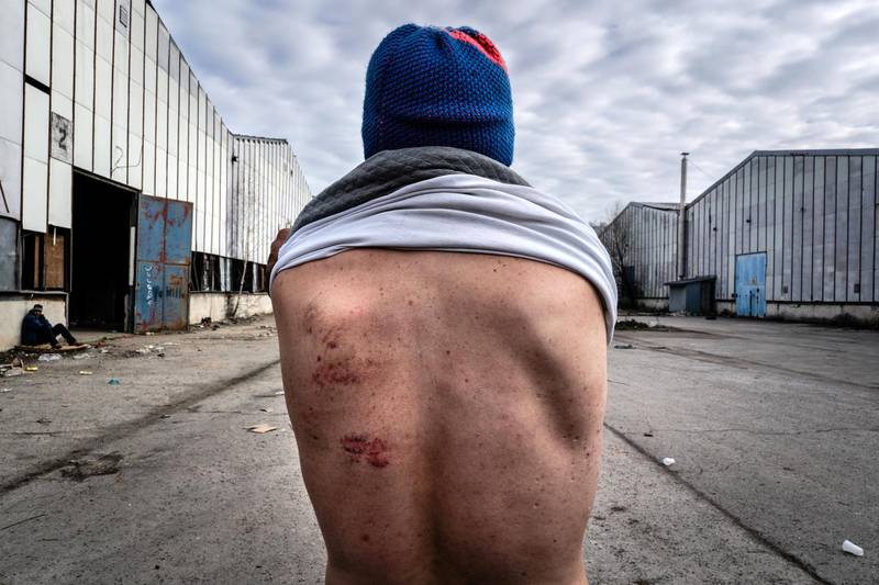 202002, Kristof Vadino, Bosnia, refugees,, migrant shows his wounds inflicted by Croation police, it is called 'The Factory', and is probably the biggst squad with very bad hygienic conditions, he came back from the border 2 days before