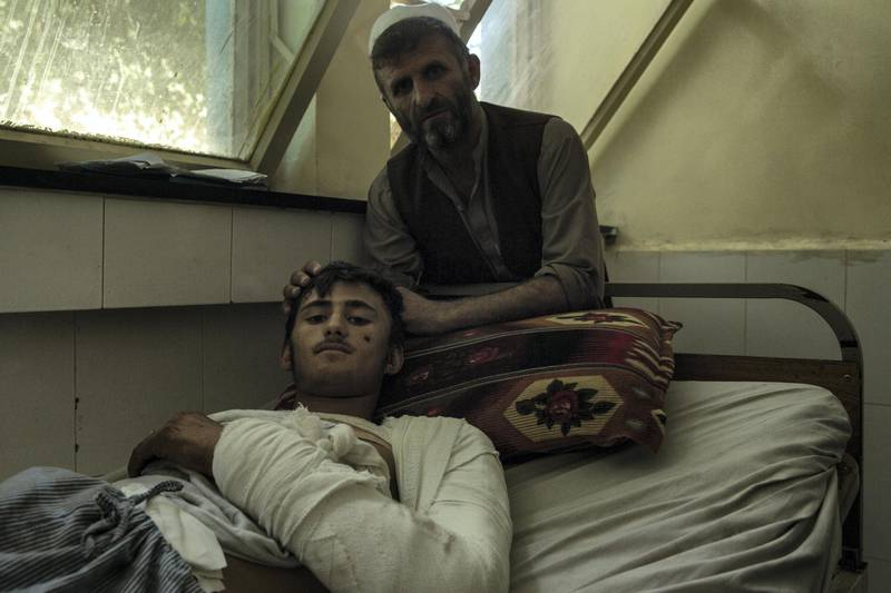 Erfan Kamal, 18, had been working as a pine nut farmer for just a day when the drone struck. In hospital in Jalalabad, he's waiting to find out how and where he can undergo head surgery. The blast fractured his skull and additionally burned his arm and leg. His father, Mohammed Hassan, 40, sits by his side.