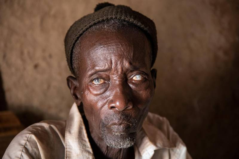 Diba Cisskho, 70, lost his eyesight to river blindness. His translucent eyes are the telltale sign of the disease, which is transmitted by black flies. The END Fund is working to eradicate river blindess in Senegal. Scenes from Tambanoumouya, Senegal where 66% of the village suffered from the disease in 1986 and today it is nearly nonexistent.