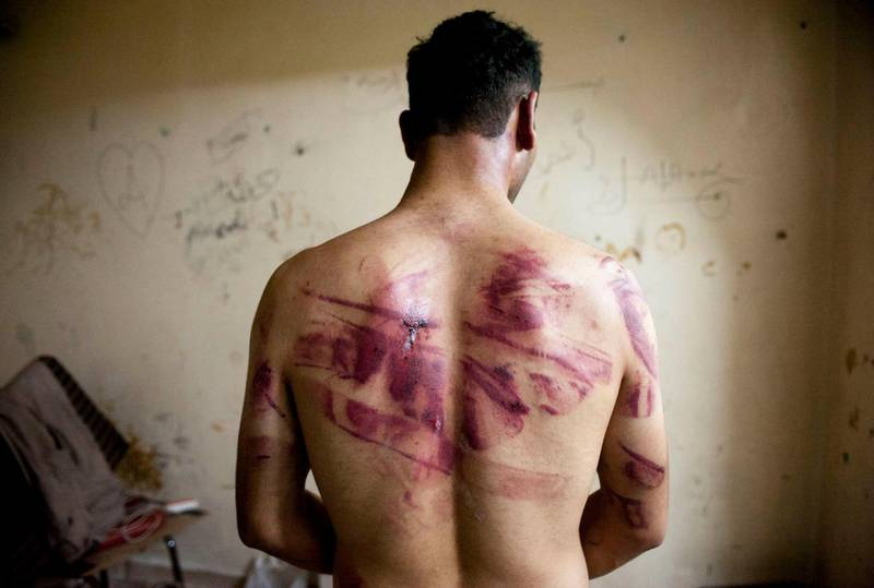 (FILES) In this file photo taken on August 23, 2012, a Syrian man shows marks of torture on his back, after he was released by regime forces, in the Bustan Pasha neighbourhood of Syria's northern city of Aleppo.  / AFP / JAMES LAWLER DUGGAN