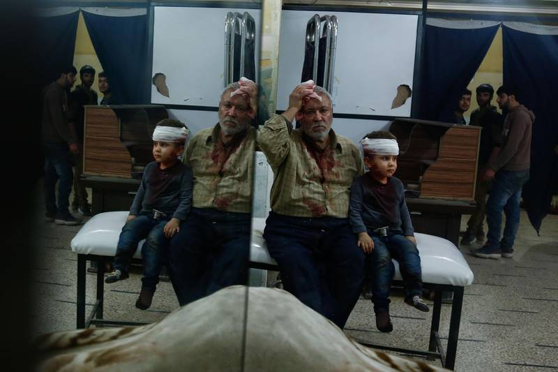 A Syrian man and a child, who were injured in shelling on the town of Misraba, receive treatment at a make-shift hospital in the besieged rebel-held town of Douma, on the outskirts of the capital Damascus on early January 4, 2018. At least 23 civilians were killed in the Syrian opposition redoubt of East Ghouta, near Damascus, with the majority of victims perishing in Russian air raids, a monitor said.  / AFP PHOTO / HASAN MOHAMED
