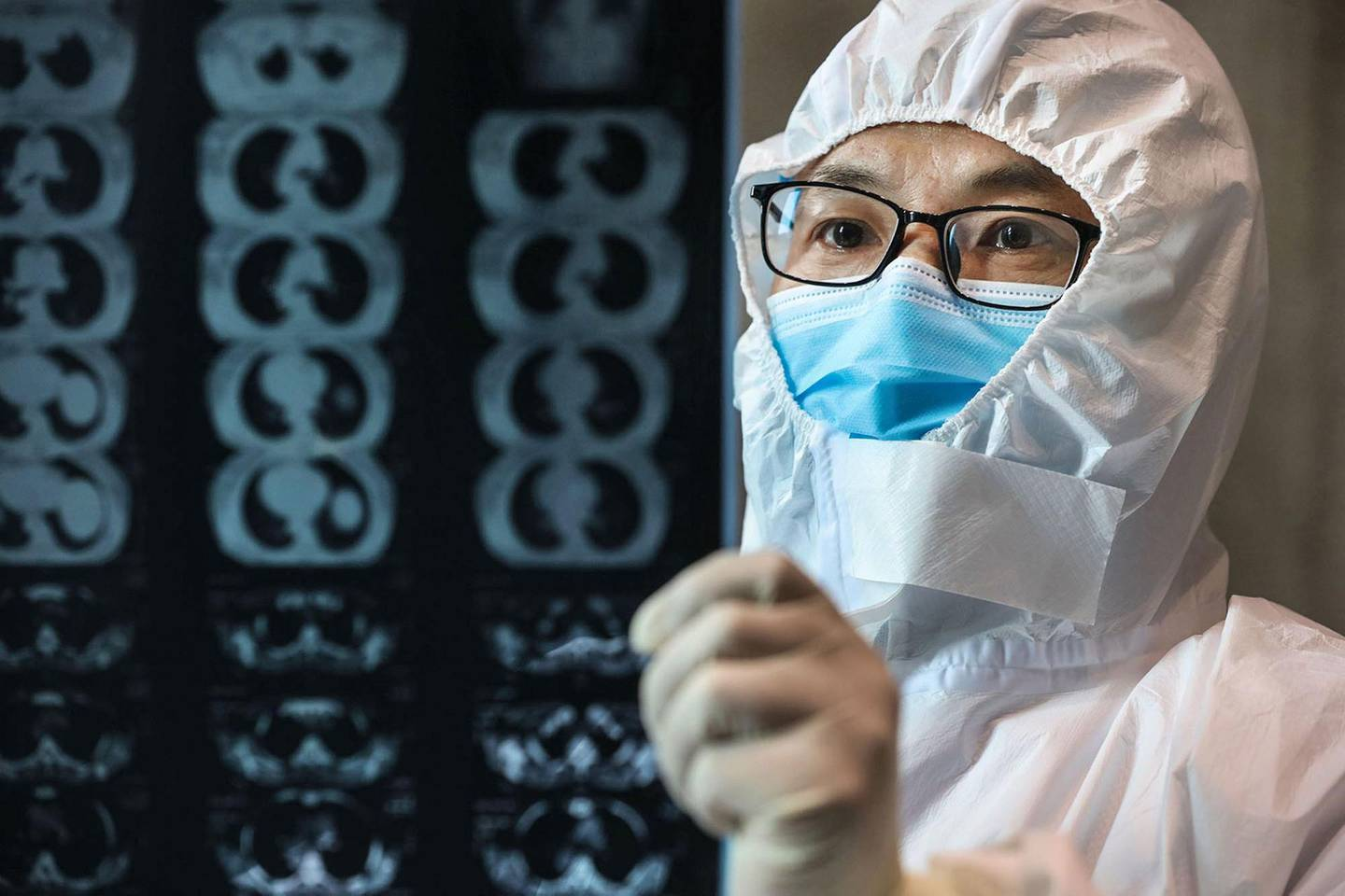 This photo taken on February 20, 2020 shows a doctor looking at a lung CT image at a hospital in Yunmeng county, Xiaogan city, in China's central Hubei province. China on February 21 touted a big drop in new cases of the coronavirus as a sign it has contained the epidemic, but fears grew abroad after two former passengers of a quarantined cruise ship died in Japan and a cluster of infections increased in South Korea. - China OUT  / AFP / STR