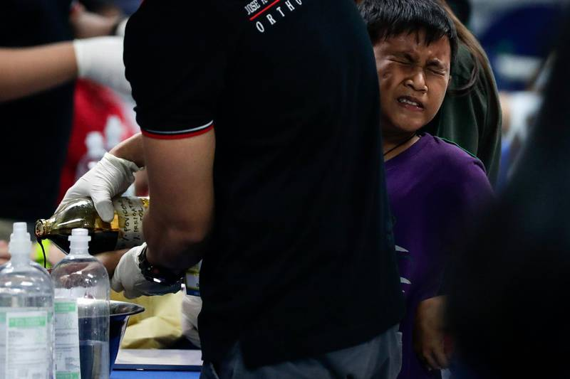 epa06411707 A reveler injured from a fireworks accident is treated at a hospital during New Year's Eve celebrations in Manila, Philippines, 01 January 2018.  EPA/MARK R. CRISTINO
