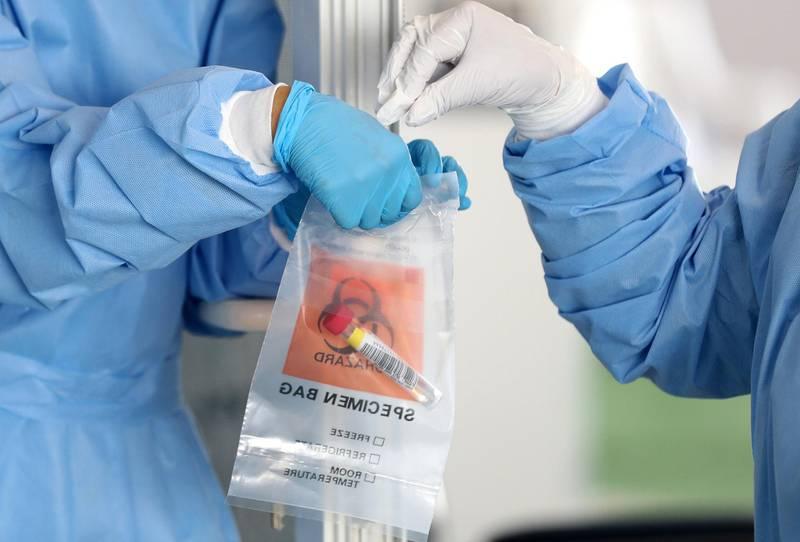 Dubai, United Arab Emirates - Reporter: Patrick Ryan. News. Covid-19/Coronavirus. People go to be tested at the Mina Rashid Covid-19 screening centre in Dubai. Thursday, July 2nd, 2020. Dubai. Chris Whiteoak / The National