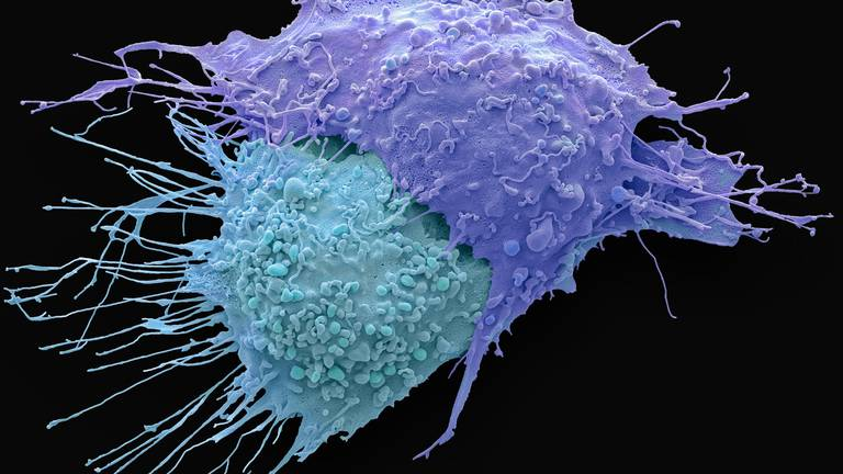 An image that illustrates this article Ovarian cancer treatment is 'highly effective' and could help thousands