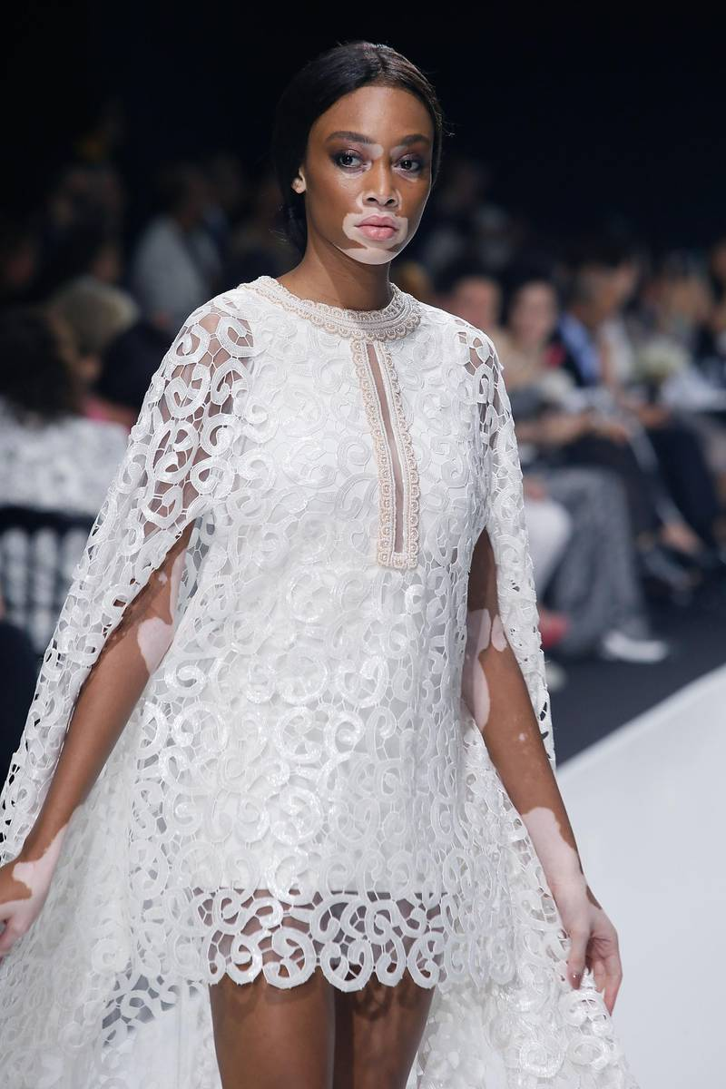 PARIS, FRANCE - JULY 03: Model Winnie Harlow walks the runway during the Sebastian Gunawan Couturissimo Fall/Winter 2016-2017 show as part of Paris Fashion Week on July 3, 2016 in Paris, France.  (Photo by Laurent Viteur/Getty Images) *** Local Caption ***  al15ma-fashion-afw01.jpg